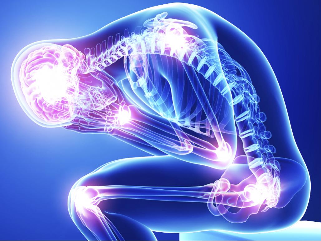 tender points-fibromyalgia